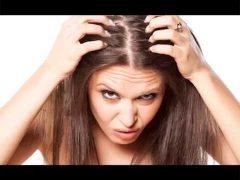 Врачи дерматологи Биробиджана: перхоть может быть симптомом псориаза. Шампуни против перхоти это не лечение. Подробнее об этом вы узнаете в новом, 88 выпуске программы «Будь Здоров»