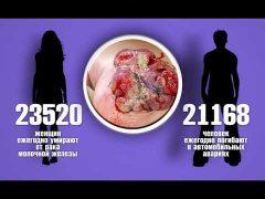 УЗИ молочной железы со скидкой 50% могут пройти биробиджанки в МДЦ