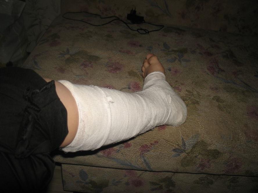 Картинка сломанной ноги